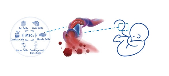 umbilical cord mesenchymal stem cells are a valuable stem cell source and can differentiate to adipose cells, hepatocytes, cardiocytes, muscle cells, nerve cells and cartilage and bone cells